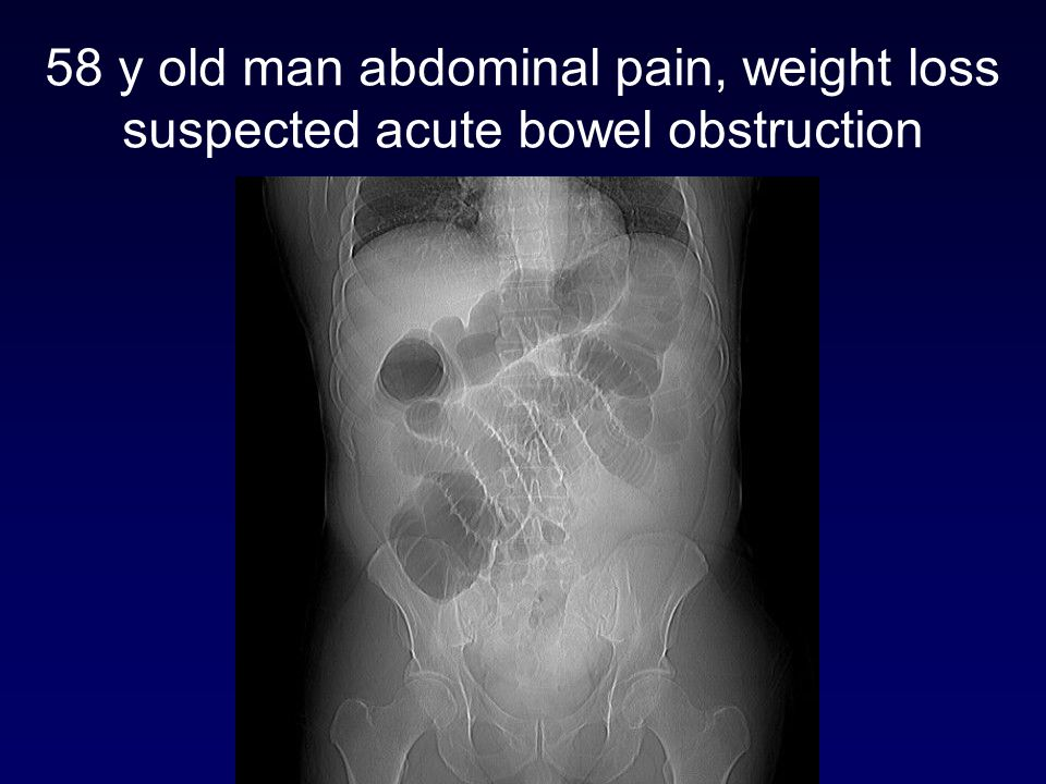 58 y old man abdominal pain, weight loss suspected acute bowel obstruction