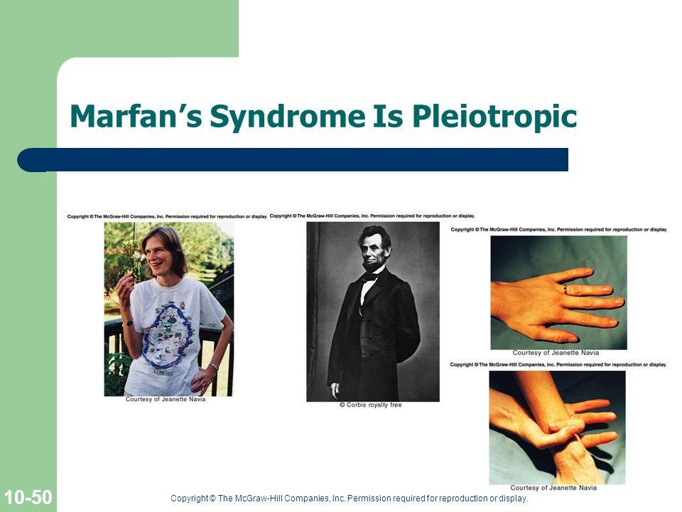 Marfan's Syndrome Is Pleiotropic
