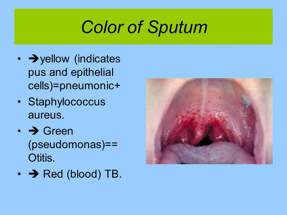 Color of Sputum yellow (indicates pus and epithelial cells)=pneumonic+ Staphylococcus aureus.  Green (pseudomonas)== Otitis.
