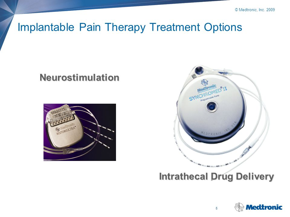 Implantable Pain Therapy Treatment Options