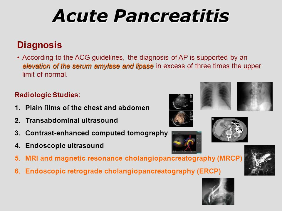 Acute Pancreatitis Diagnosis