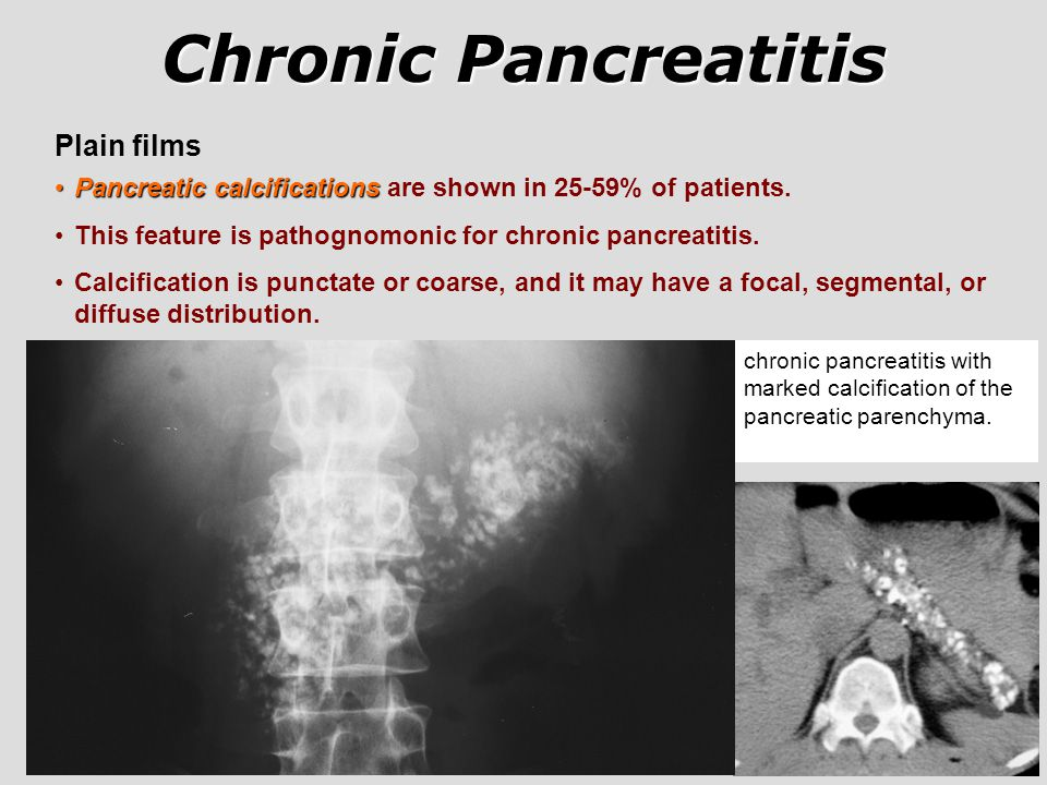 Chronic Pancreatitis Plain films