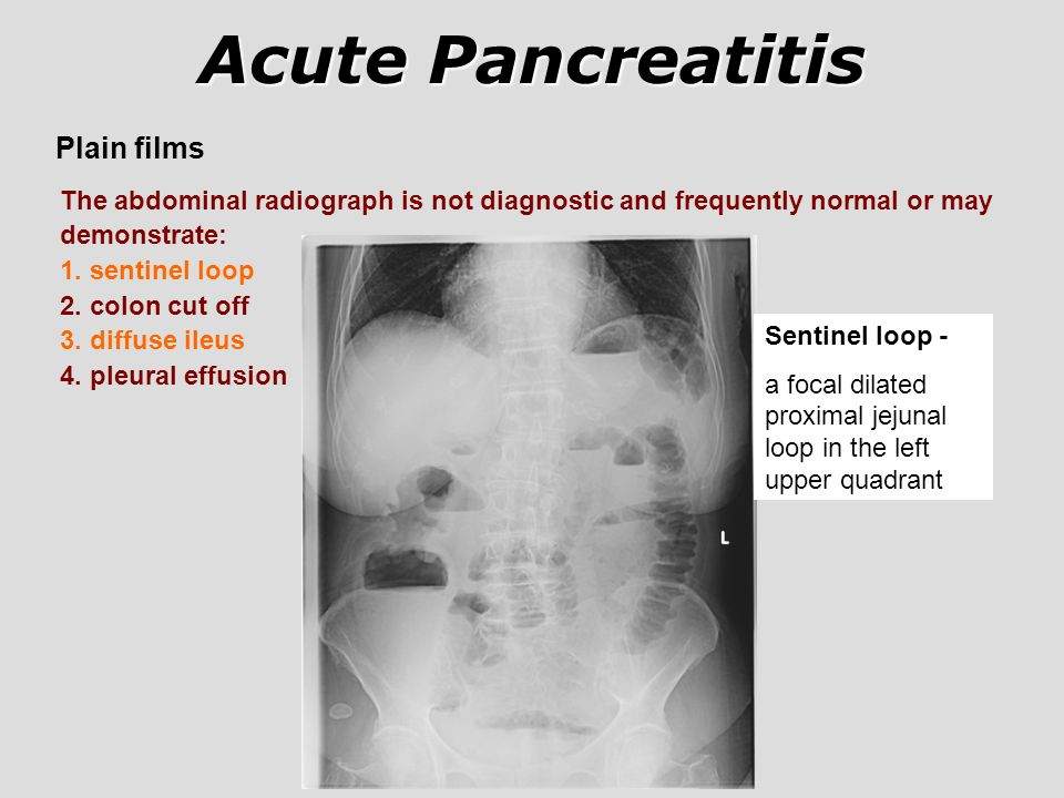 Acute Pancreatitis Plain films
