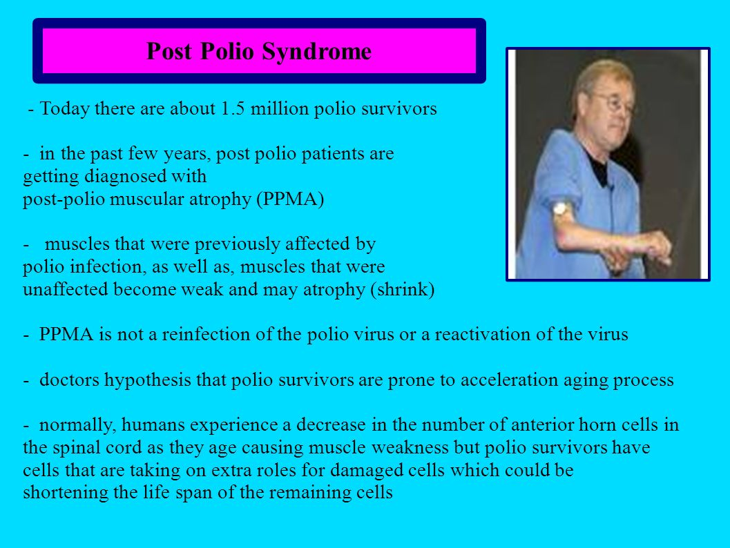 Post Polio Syndrome - Today there are about 1.5 million polio survivors. - in the past few years, post polio patients are.