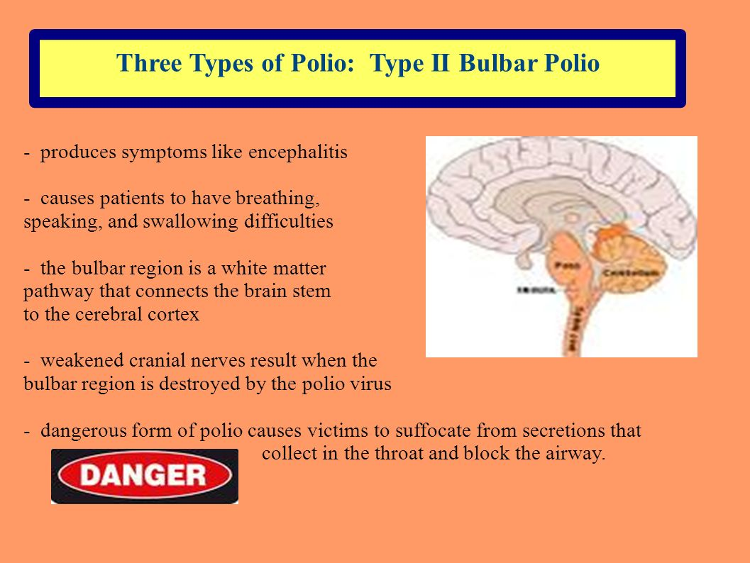 Three Types of Polio: Type II Bulbar Polio