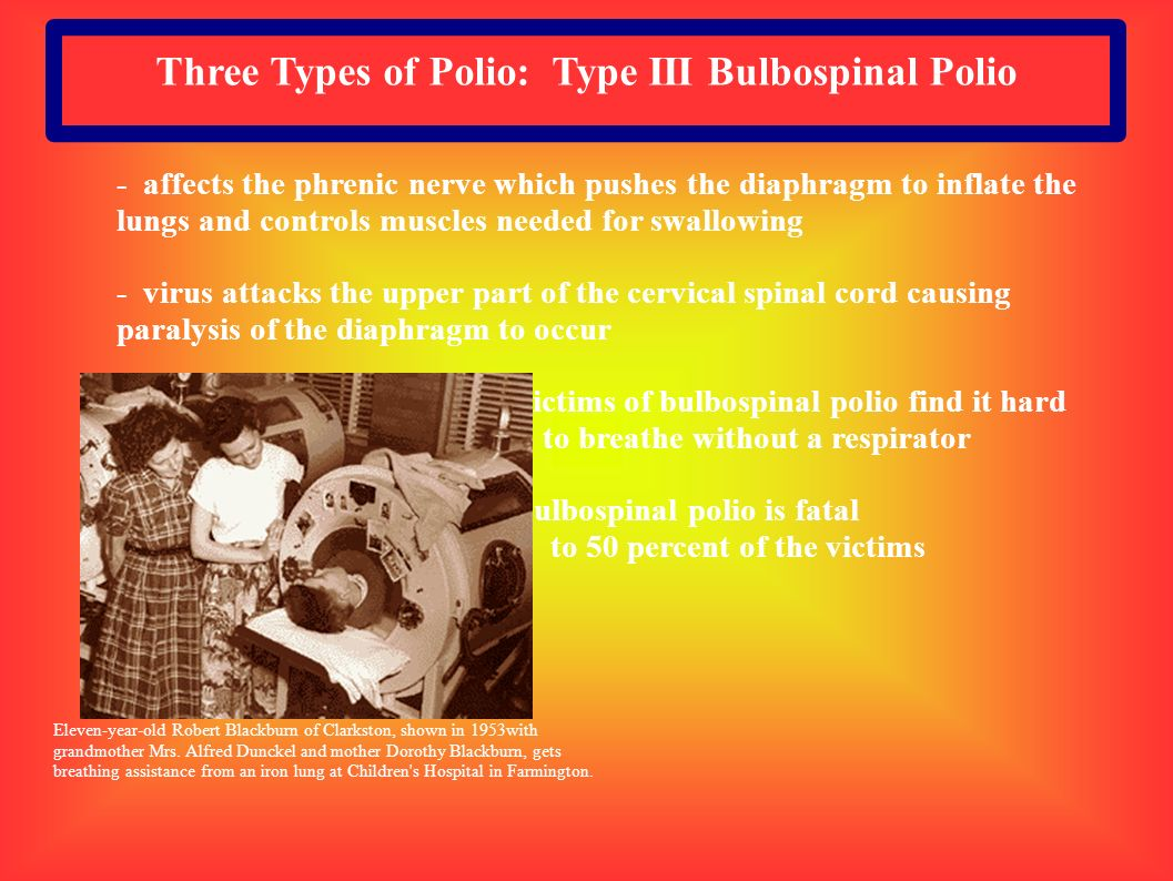 Three Types of Polio: Type III Bulbospinal Polio