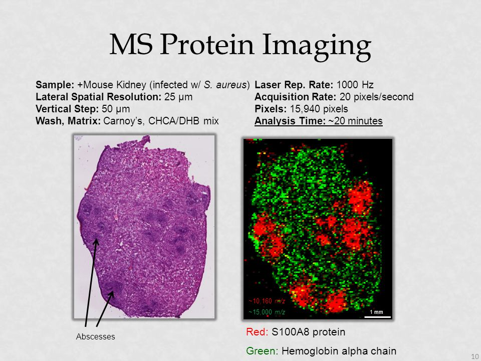 MS Protein Imaging Red: S100A8 protein Green: Hemoglobin alpha chain