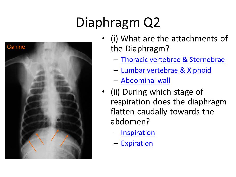 Diaphragm Q2 (i) What are the attachments of the Diaphragm