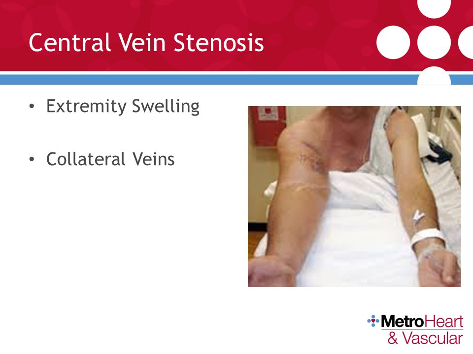 Central Vein Stenosis Extremity Swelling Collateral Veins