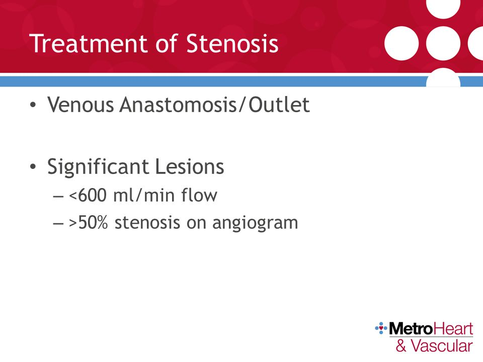 Treatment of Stenosis Venous Anastomosis/Outlet Significant Lesions