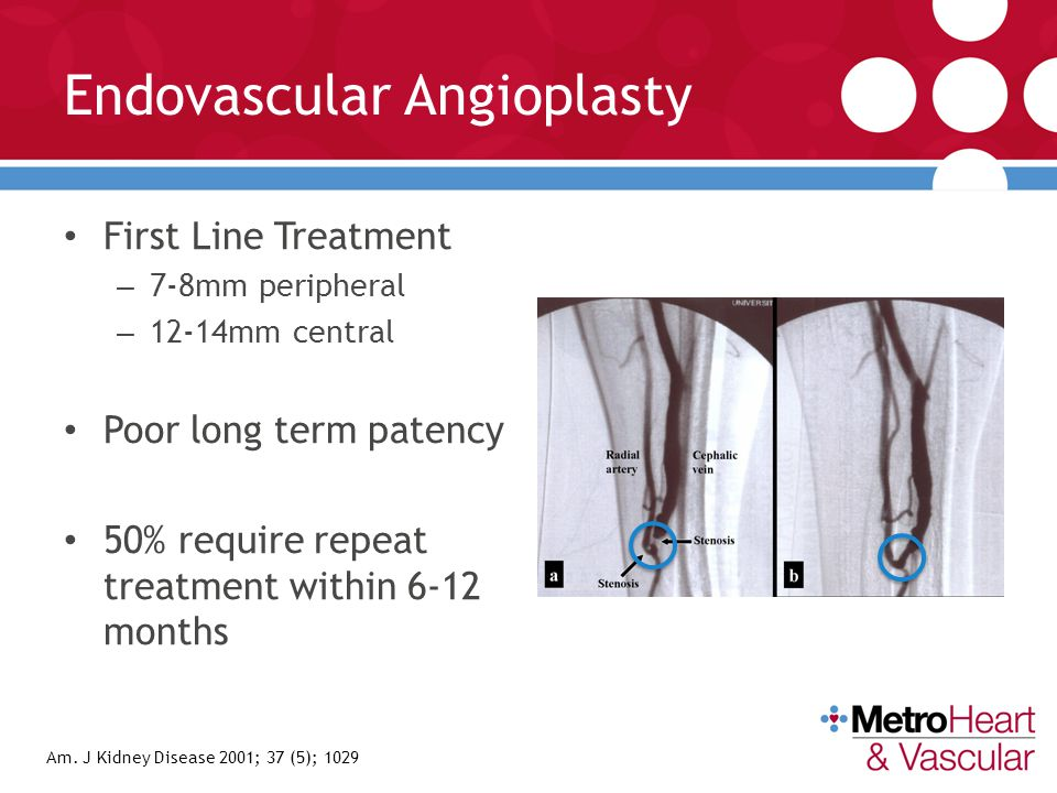 Endovascular Angioplasty
