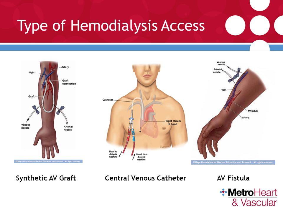 Type of Hemodialysis Access