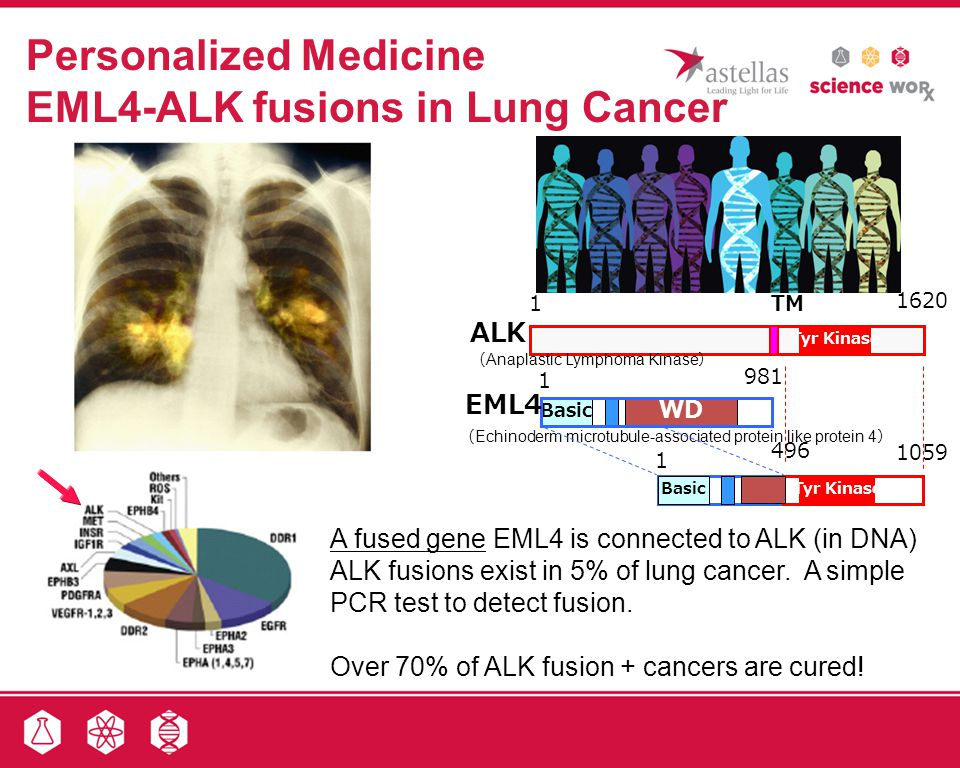 Personalized Medicine EML4-ALK fusions in Lung Cancer