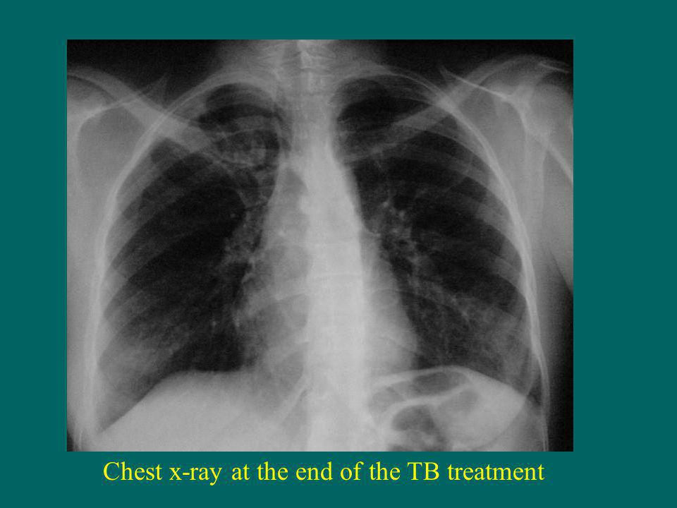 Chest x-ray at the end of the TB treatment
