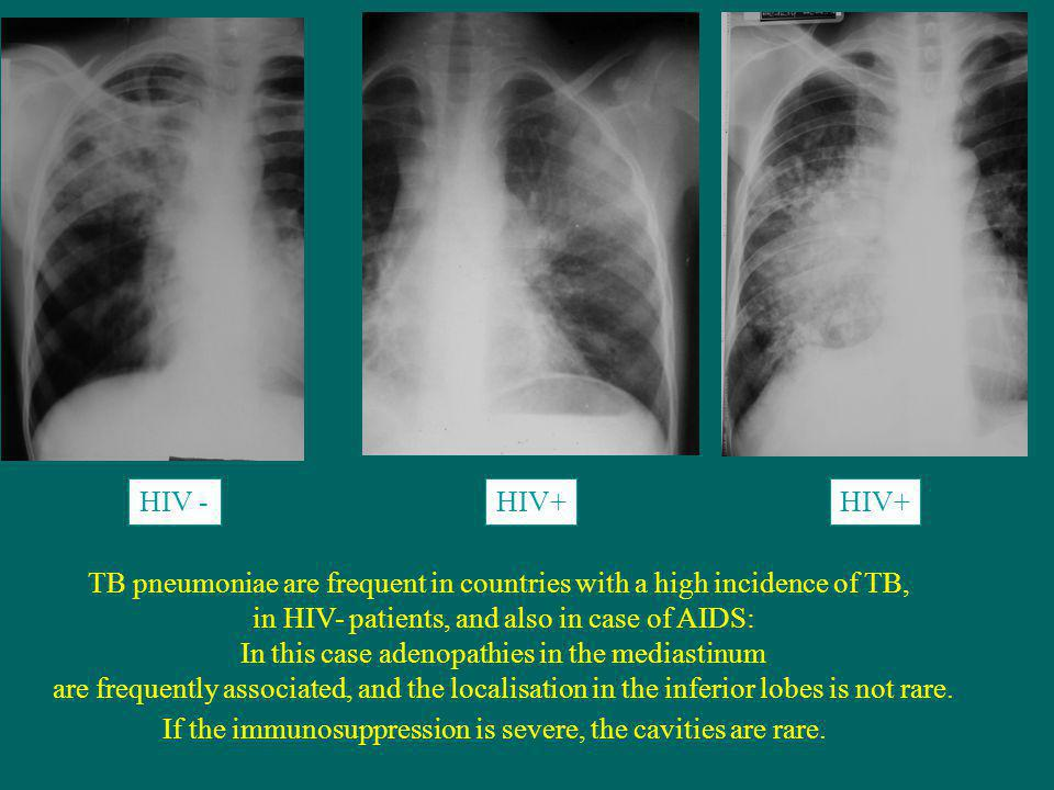 TB pneumoniae are frequent in countries with a high incidence of TB,