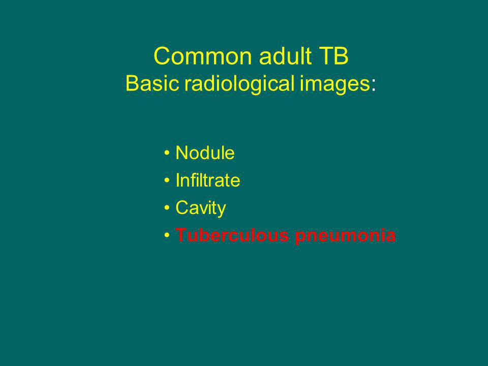 Common adult TB Basic radiological images: