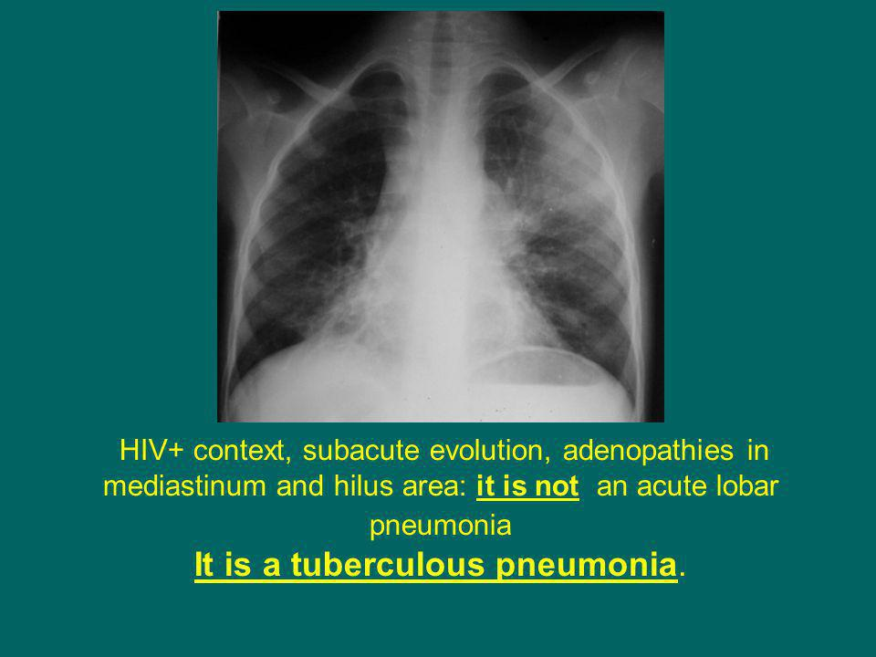 HIV+ context, subacute evolution, adenopathies in mediastinum and hilus area: it is not an acute lobar pneumonia It is a tuberculous pneumonia.