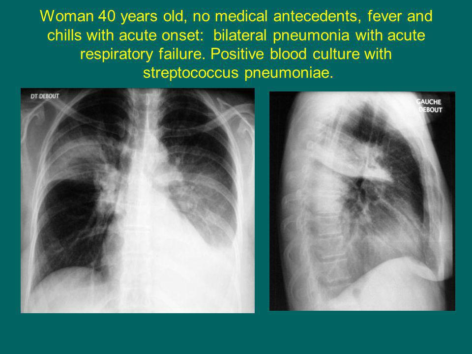 Woman 40 years old, no medical antecedents, fever and chills with acute onset: bilateral pneumonia with acute respiratory failure.