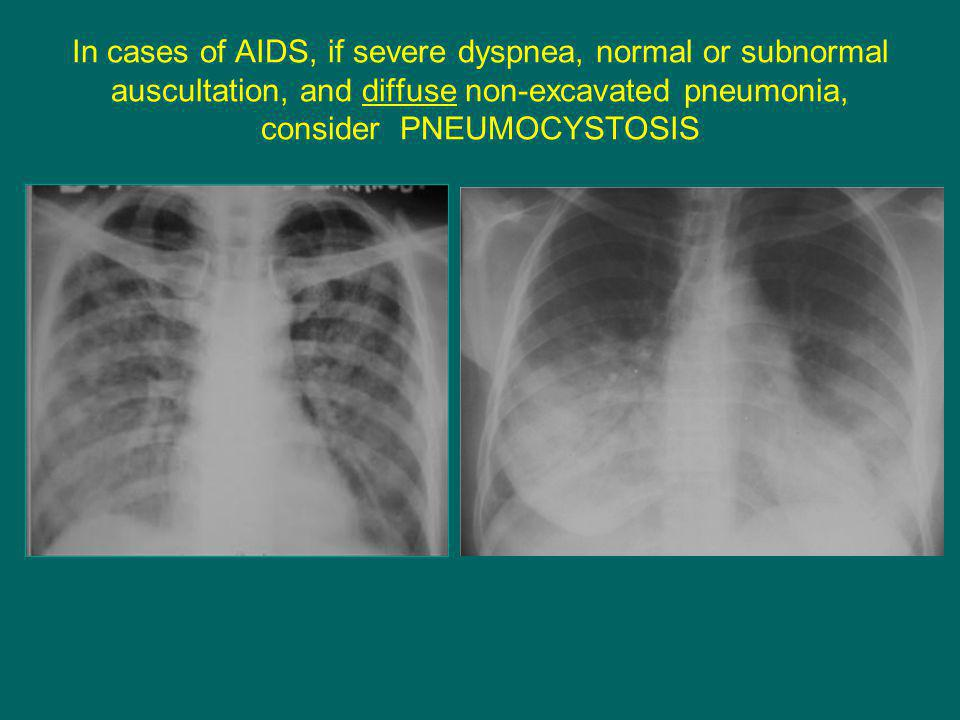 In cases of AIDS, if severe dyspnea, normal or subnormal auscultation, and diffuse non-excavated pneumonia, consider PNEUMOCYSTOSIS