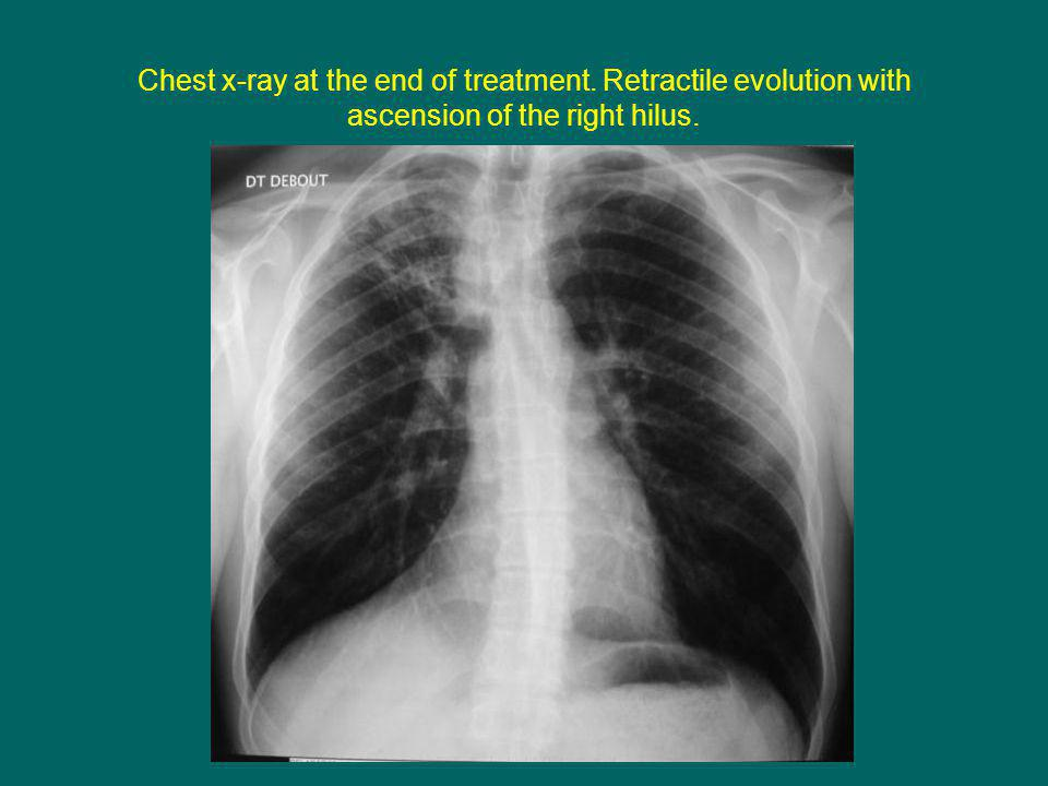 Chest x-ray at the end of treatment