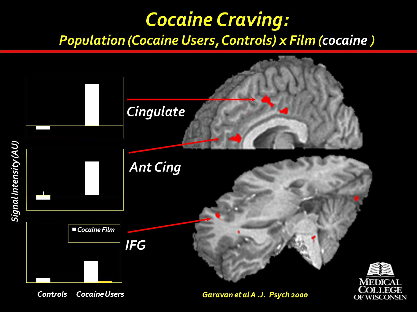 Cocaine Craving: Population (Cocaine Users, Controls) x Film (cocaine ) Cingulate. Ant Cing. Signal Intensity (AU)
