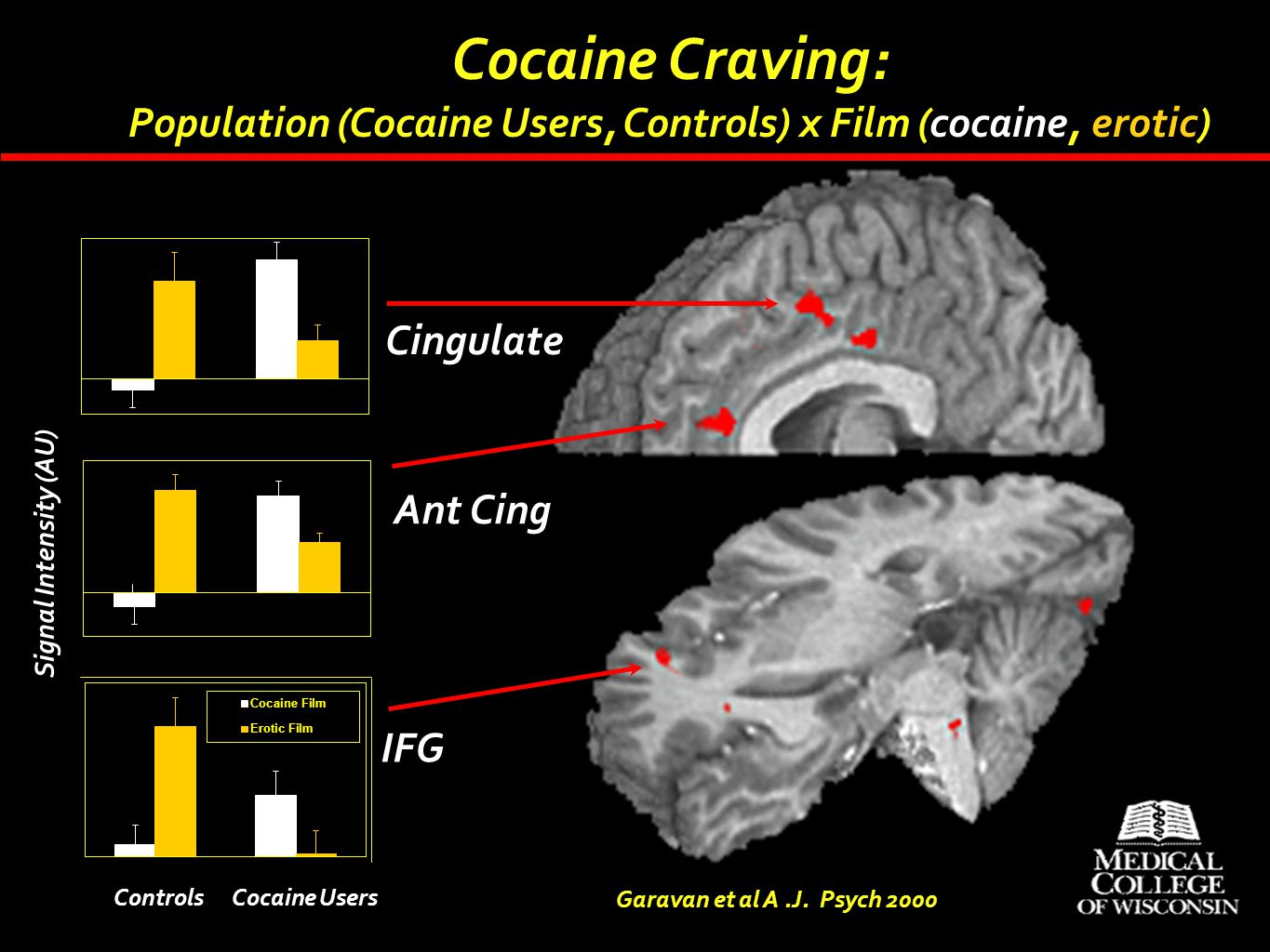 Cocaine Craving: Population (Cocaine Users, Controls) x Film (cocaine, erotic) Cingulate. Ant Cing.