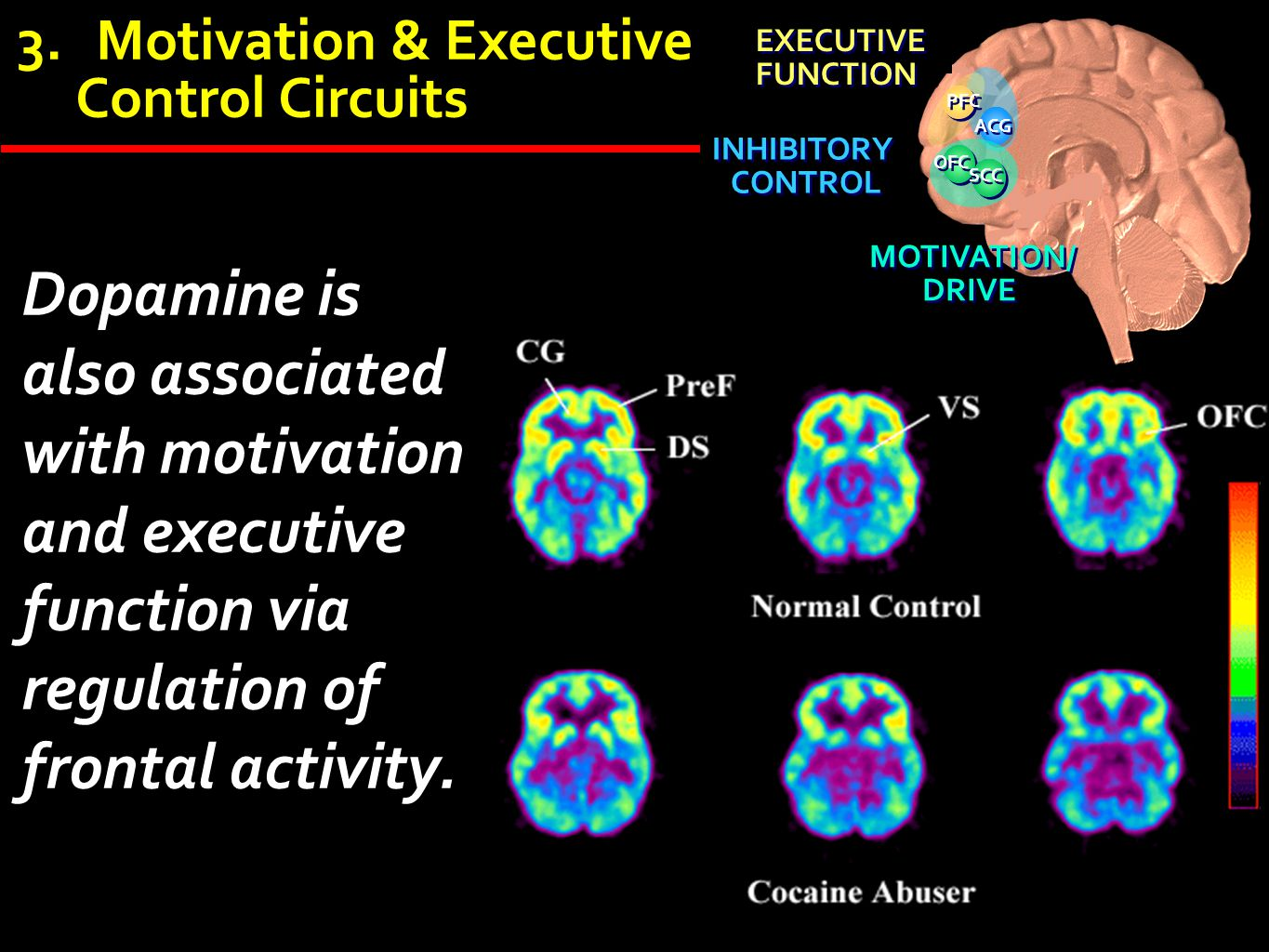 ACG OFC. SCC. INHIBITORY. CONTROL. EXECUTIVE. FUNCTION. PFC. MOTIVATION/ DRIVE. Motivation & Executive.