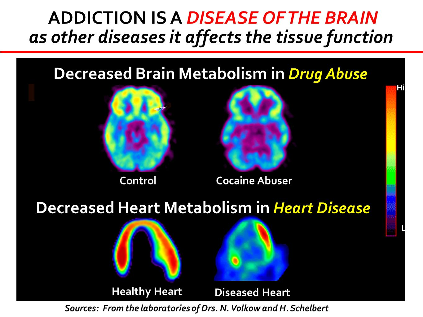 ADDICTION IS A DISEASE OF THE BRAIN