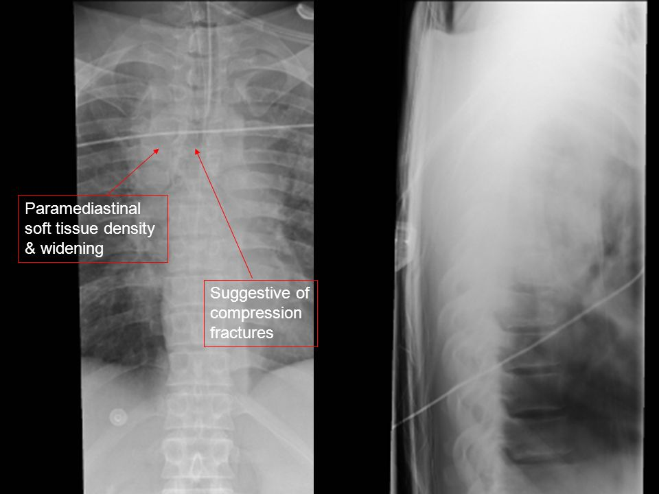 Paramediastinal soft tissue density & widening Suggestive of compression fractures