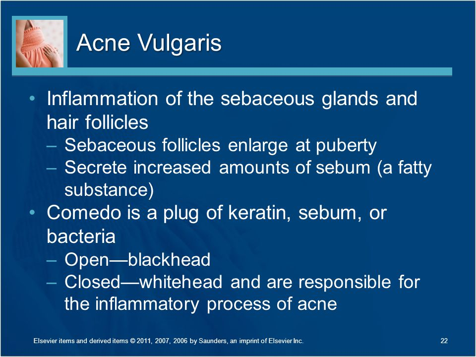 Acne Vulgaris Inflammation of the sebaceous glands and hair follicles