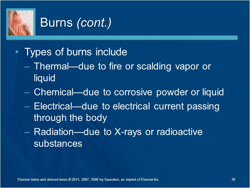 Burns (cont.) Types of burns include