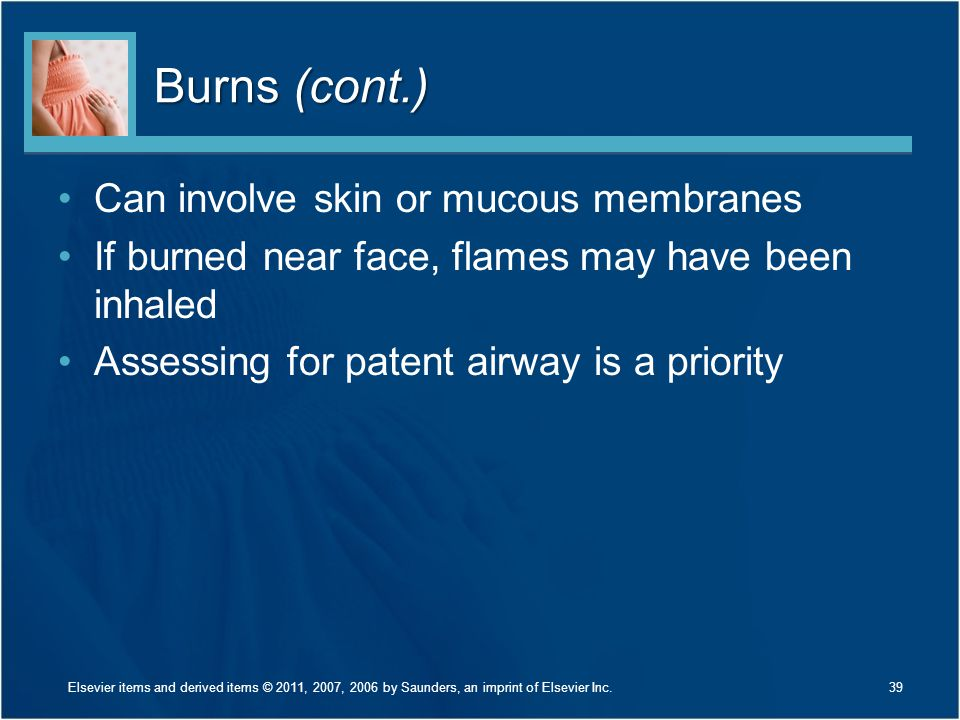 Burns (cont.) Can involve skin or mucous membranes