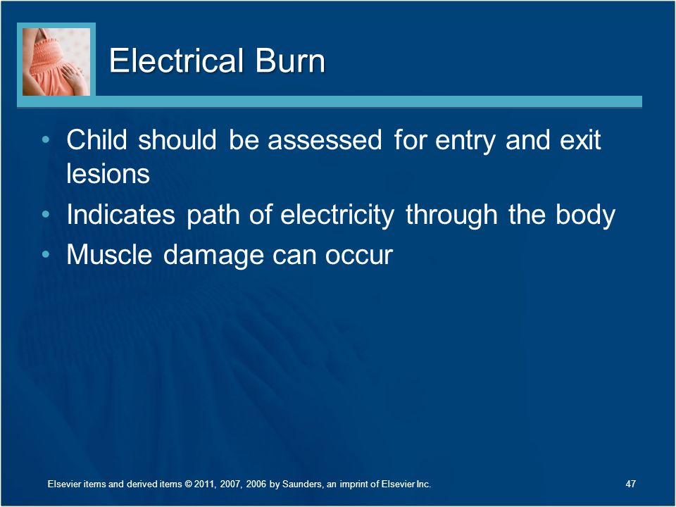 Electrical Burn Child should be assessed for entry and exit lesions