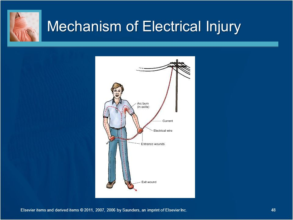 Mechanism of Electrical Injury