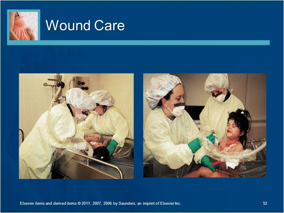 Wound Care Discuss Figure 30-17 on page 705.