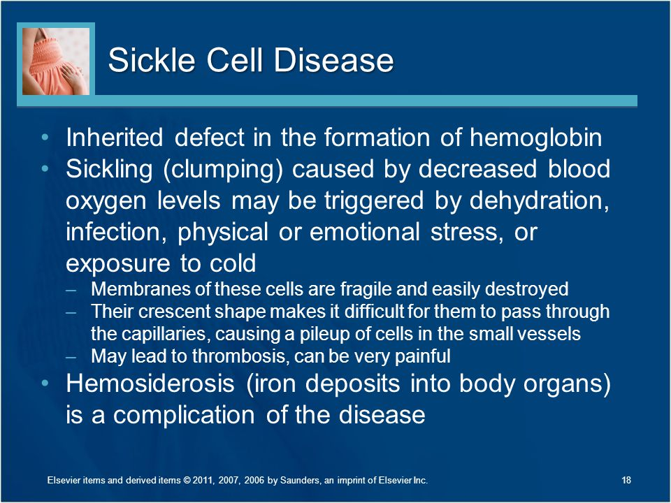 Sickle Cell Disease Inherited defect in the formation of hemoglobin