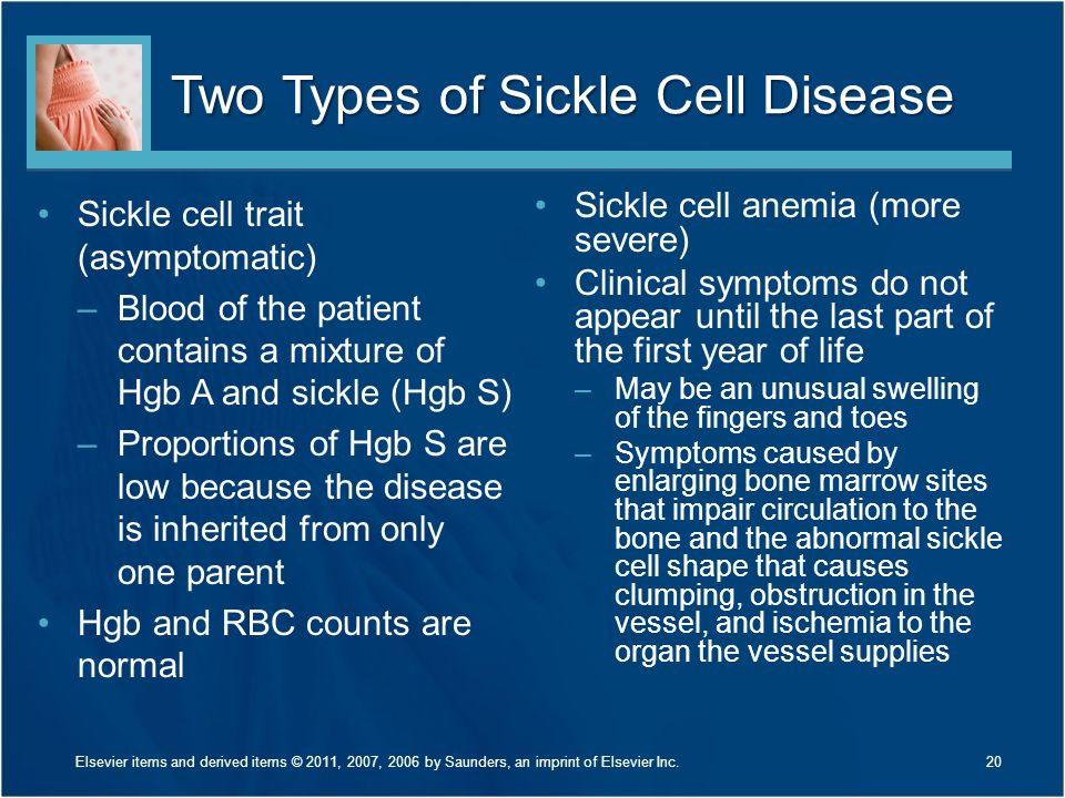 Two Types of Sickle Cell Disease