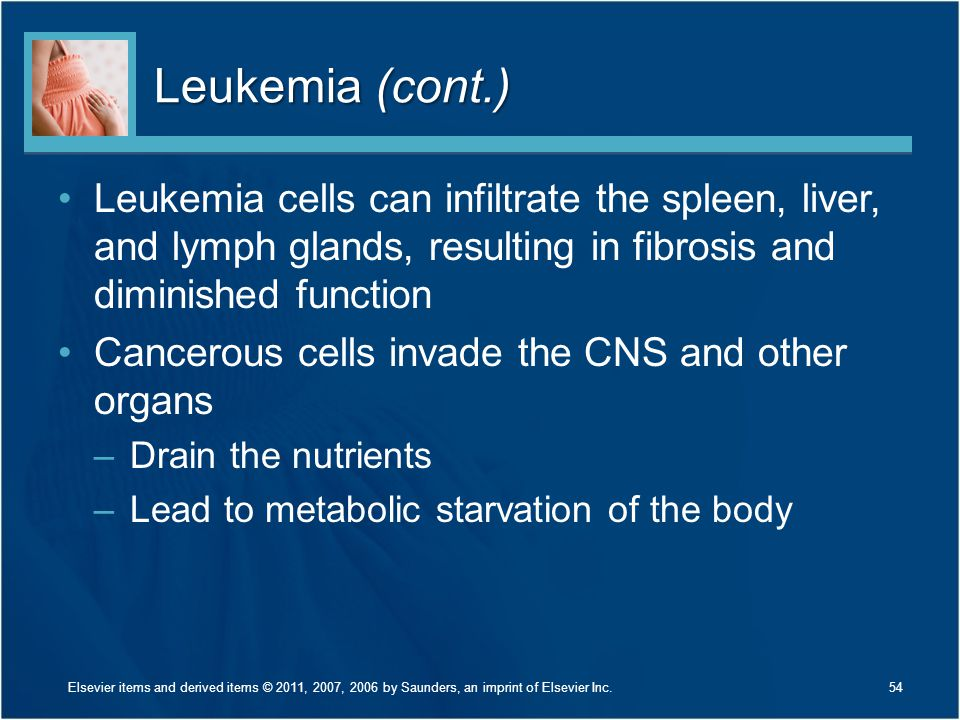 Leukemia (cont.) Leukemia cells can infiltrate the spleen, liver, and lymph glands, resulting in fibrosis and diminished function.