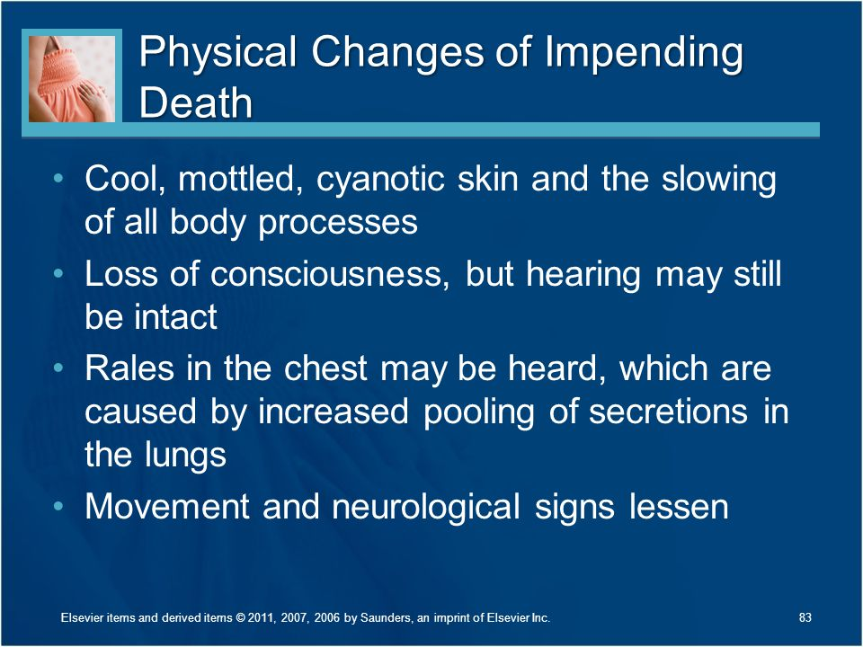 Physical Changes of Impending Death