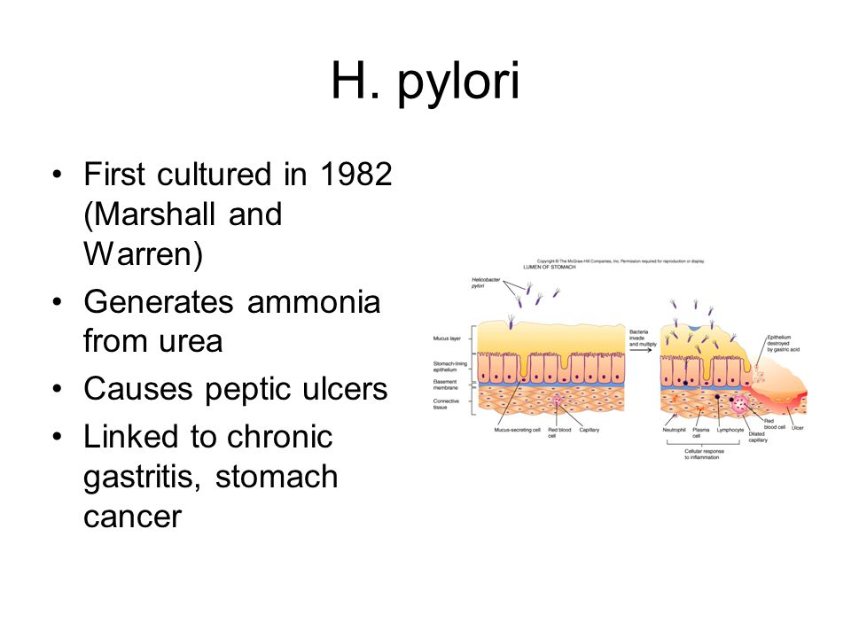 H. pylori First cultured in 1982 (Marshall and Warren)