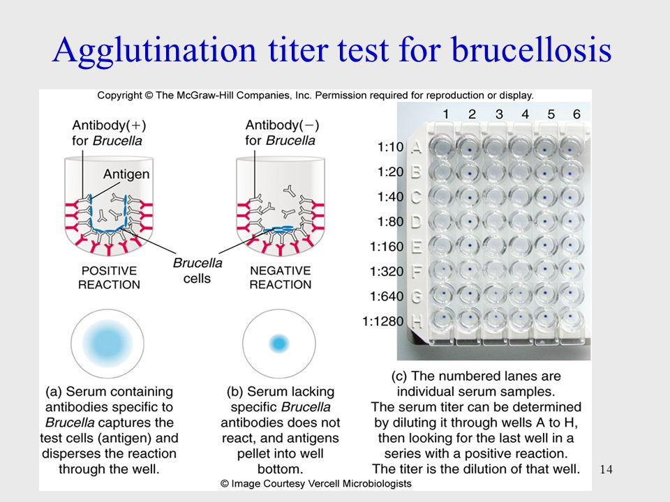 Agglutination titer test for brucellosis