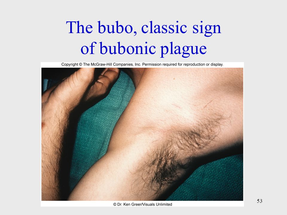 The bubo, classic sign of bubonic plague