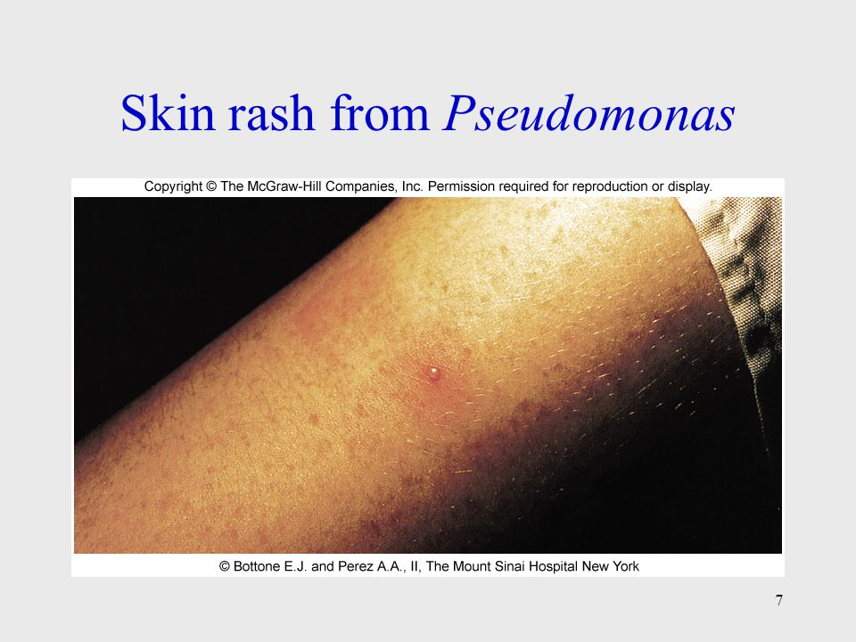 Skin rash from Pseudomonas