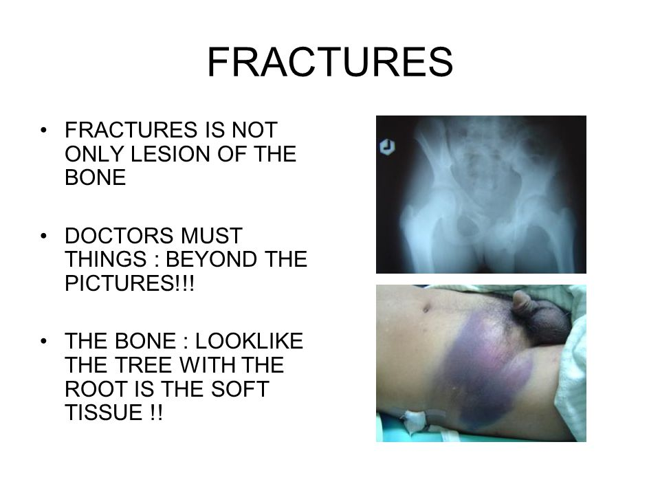 FRACTURES FRACTURES IS NOT ONLY LESION OF THE BONE