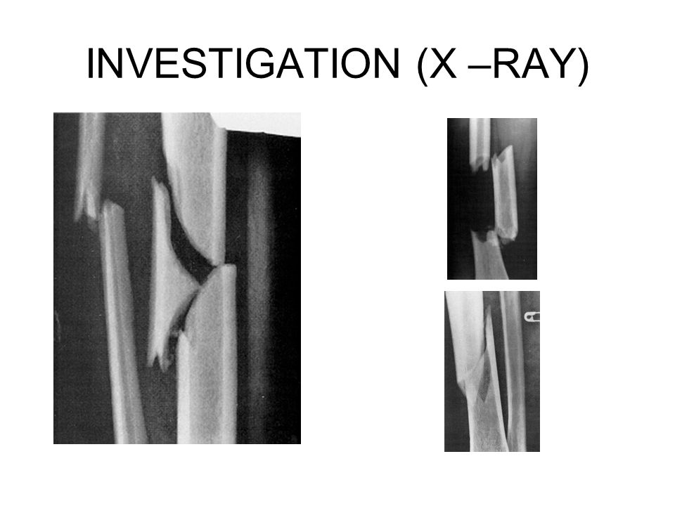 INVESTIGATION (X –RAY)