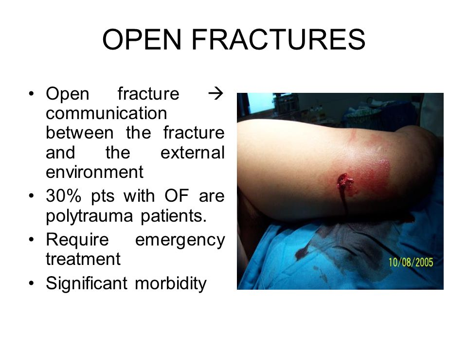 OPEN FRACTURES Open fracture  communication between the fracture and the external environment. 30% pts with OF are polytrauma patients.