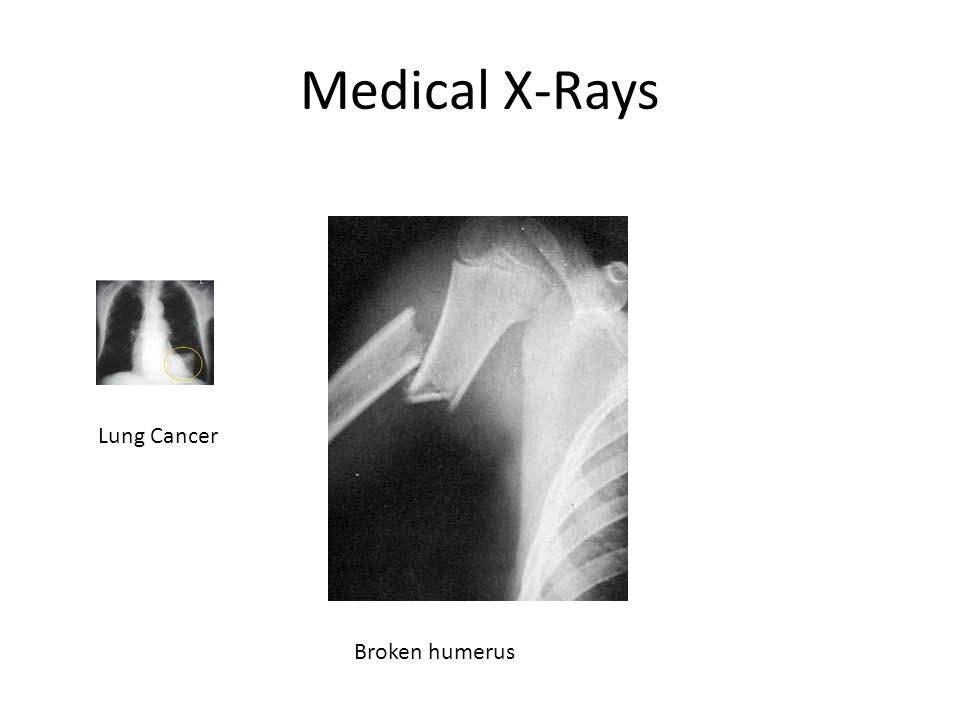 Medical X-Rays Lung Cancer Broken humerus