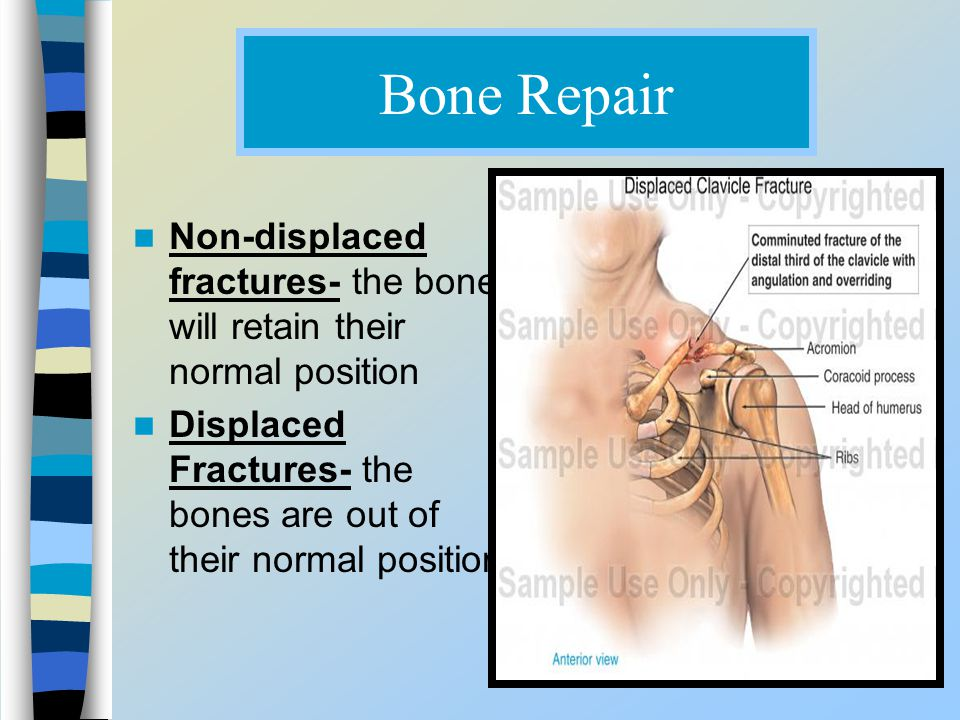 Bone Repair Non-displaced fractures- the bone will retain their normal position.
