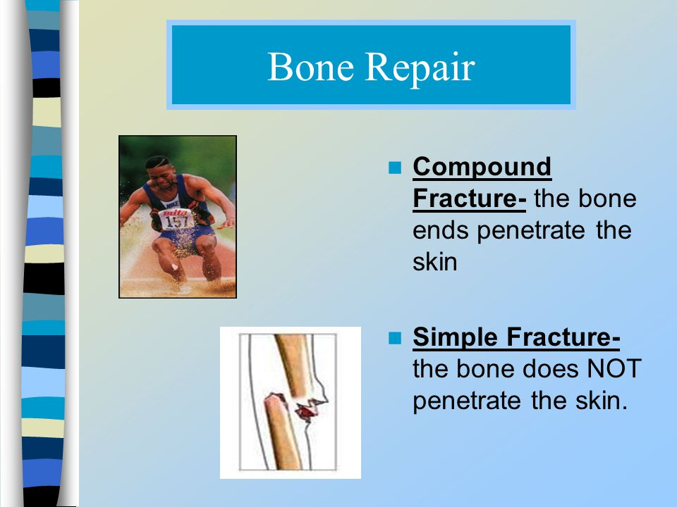 Bone Repair Compound Fracture- the bone ends penetrate the skin