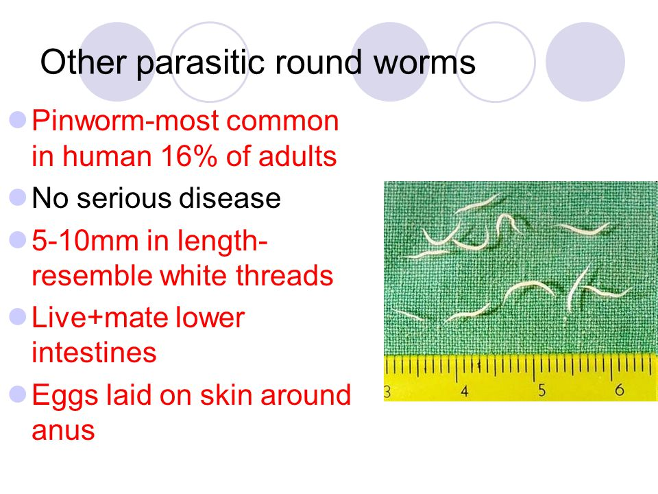Other parasitic round worms